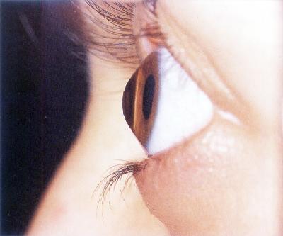 0686f8a703bfb Ceratocone e Tratamentos. - Medicina de Olhos